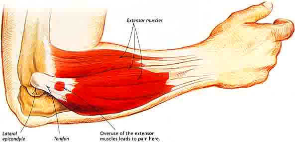 tennis elbow Cure Your Tendonitis Elbow